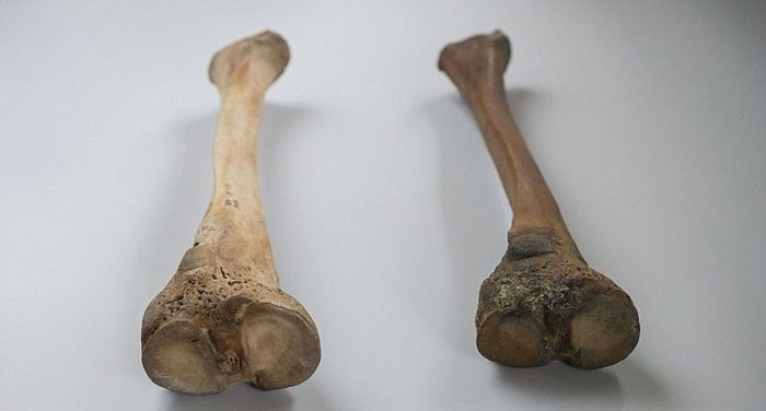 Henry VIII_Mary Rose_study_rickets_2