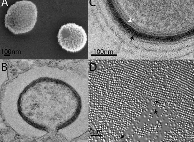 Ancient_Giant_Viruses_Siberia_2