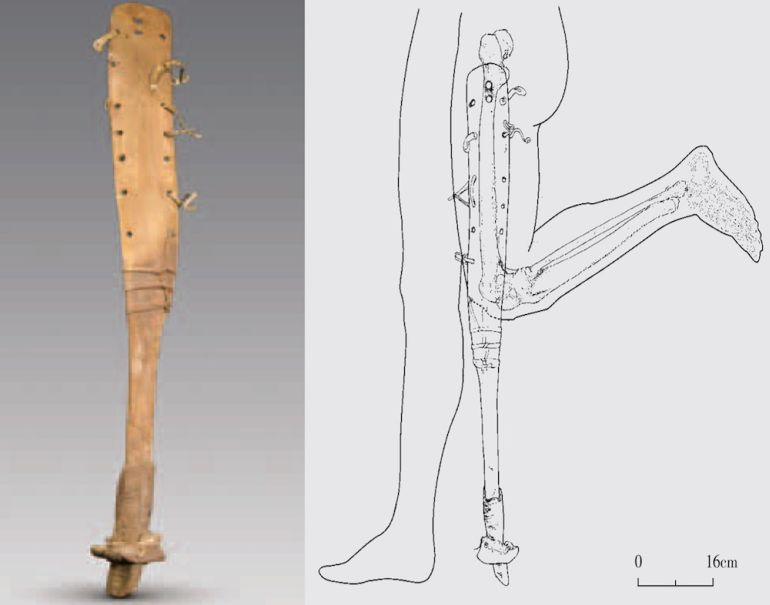 Oldest_Specimen_Prosthetic_Leg_China_1
