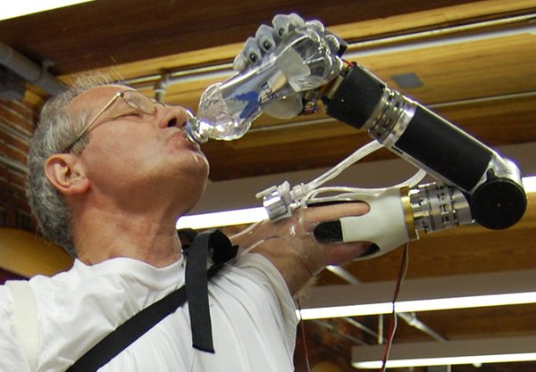 LUKE World's Most Futuristic Mind-Controlled Prosthetic Arm-5