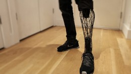 William Root_Exo Prosthetic Leg