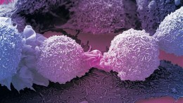 Modified_herpes_virus_skin_cancer