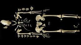World_Oldest_Leukemia_Case_7000-Year_Old_Skeleton_1