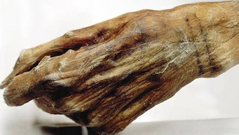 Meet Oetzi, A 5,300-Year-Old Mummy With The World's Oldest Tattoos -1