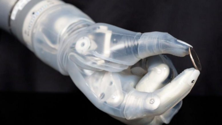 LUKE World's Most Futuristic Mind-Controlled Prosthetic Arm-4